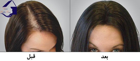 نتیحه استفاده از شامپو ضد ریزش مو SYOSS صورتی