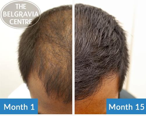 درمان ریزش مو پیش ماست