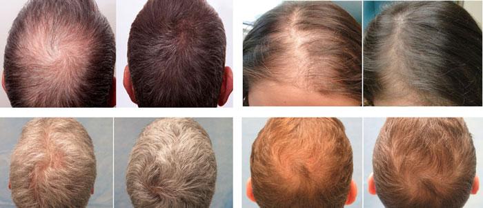 قرص رشد مو